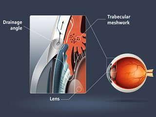 Cartoon image of glaucoma.