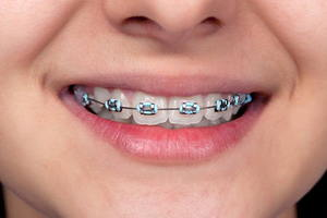 Tips For Teeth With Braces