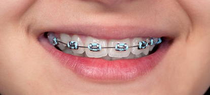 Tips For Teeth With Braces | DoItYourself.com