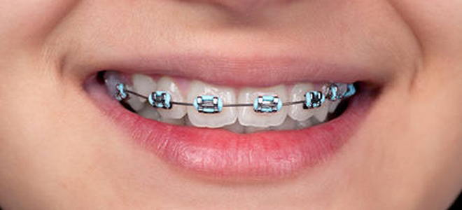 Tips for teeth with braces doityourself tips for teeth with braces tips for teeth with braces solutioingenieria Choice Image