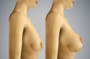 Vectra 3d breast augmentation