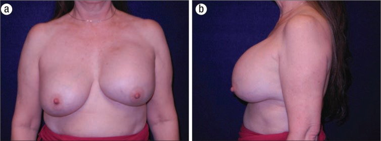 Breast implant-associated anaplastic large cell lymphoma