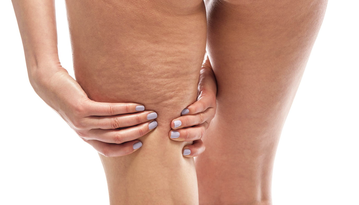 cellulite on back of thighs