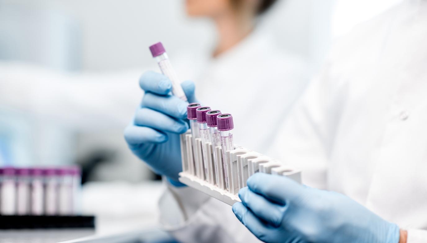 vials for lab test