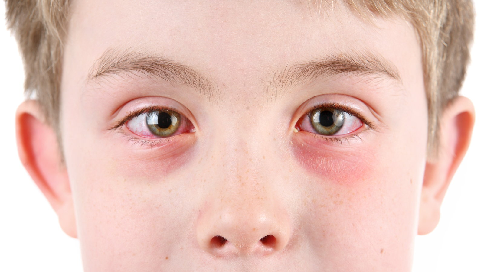 child with eye infection