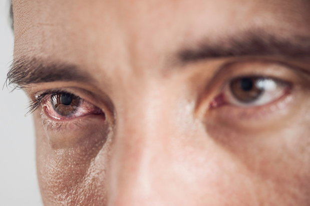 alcoholic with bloodshot eyes