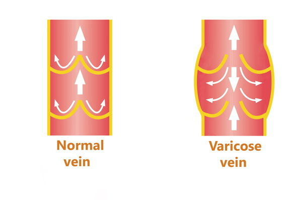 In healthy veins, little valves help push blood back up through the legs to the heart. In unhealthy veins, the valves are slack and allow blood to flow backward and pool.