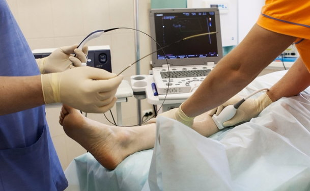 rfa treatment for varicose veins