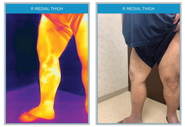 After successful ablation of the truncal greater saphenous vein, this patient was found to have a residual anterior accessory vein that was not obvious to the naked eye, but was highly symptomatic and subsequently treated with complete resolution of symptoms and thermographic temperature gradients.
