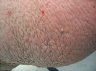 Patient with confluent papules and nodules