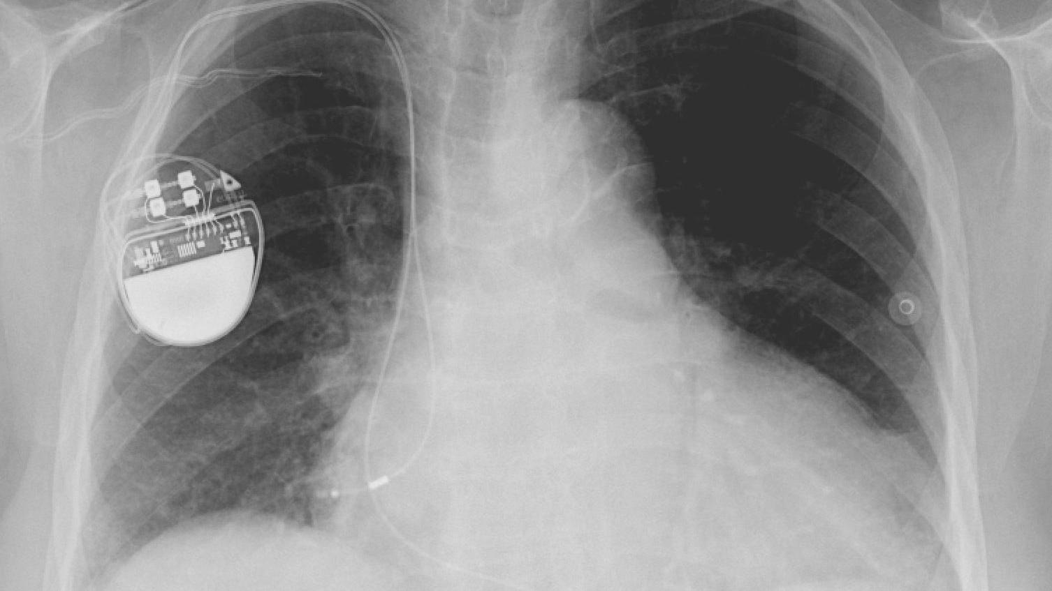 X-ray of the thorax with a pacemaker in situ (credit: Lucien Monfils via Wikimedia)