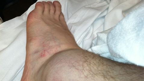 Brad Keselowski's foot after Road Atlanta crash. Swelling? What Swelling?